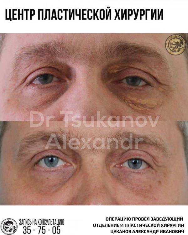 Блефаропластика омоложение век калининград цуканов александр иванович