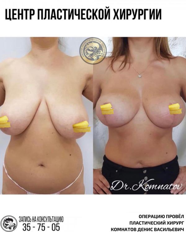 увеличение подтяжка груди импланты ассиметрия груди калининград комнатов денис васильевич