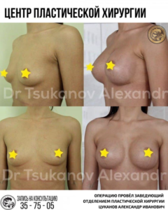 увеличение подтяжка груди импланты ассиметрия груди калининград цуканов александр иванович