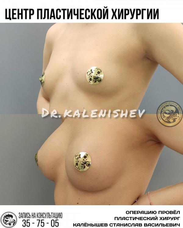 увеличение груди импланты маммопластика калининград каленышев станислав васильевич